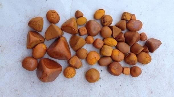 Gallstones Treatment in Maharashtra