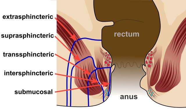 Bariatric Treatment in Pune
